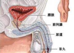治疗前列腺痛贵吗